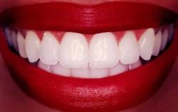 Освежете и избелете усмивката си с домашни рецепти