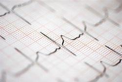 БЧК и Областната управа дариха кардиограф на ботевградската болница