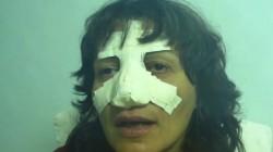 Циганин нападна и преби жена в Добрич