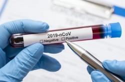 В Софийска област средната заболеваемост от коронавирус за април е била 589 на 100 хил души